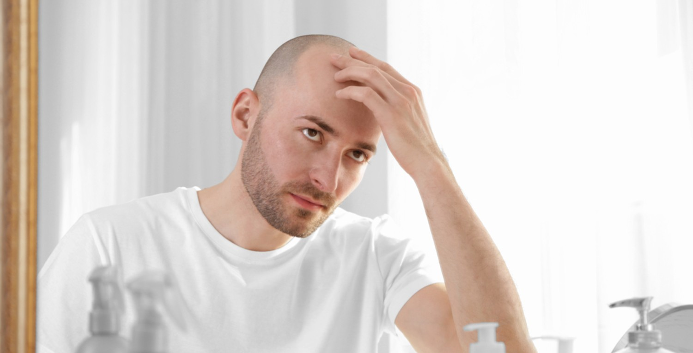 tratar-alopecia-calvicie