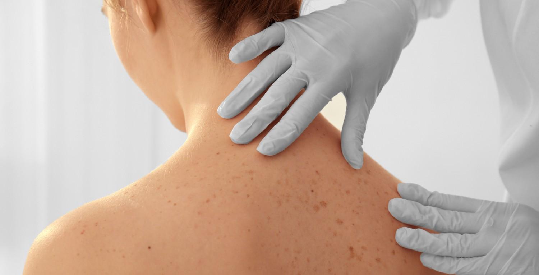 tumores-piel-dermatitis-pandemia