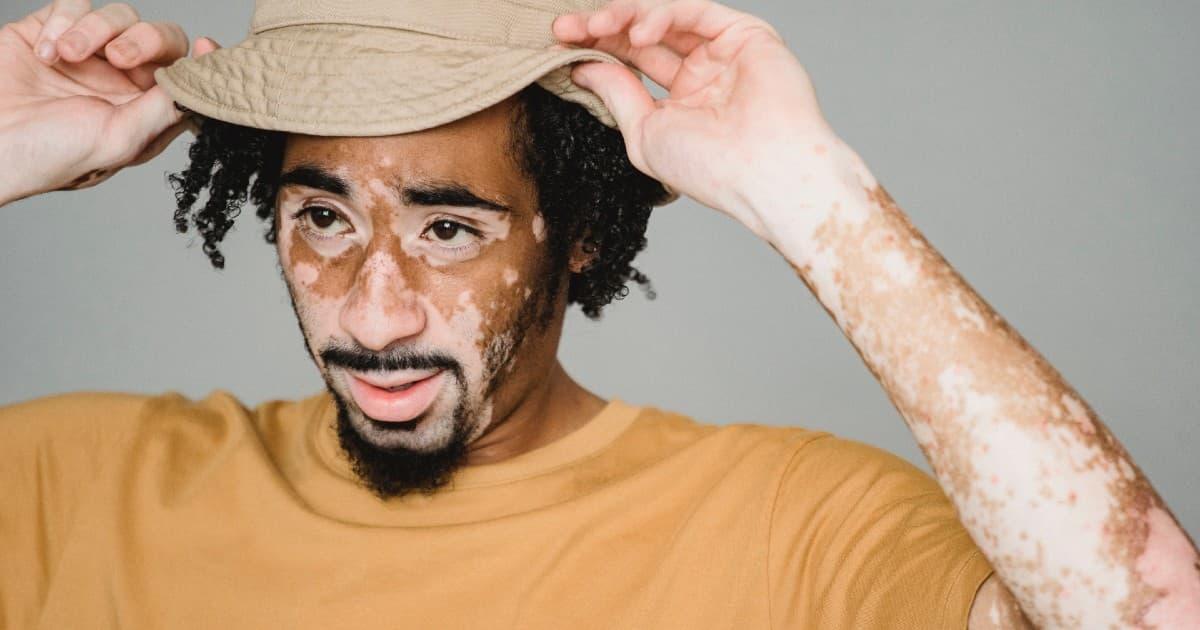que-es-vitiligo