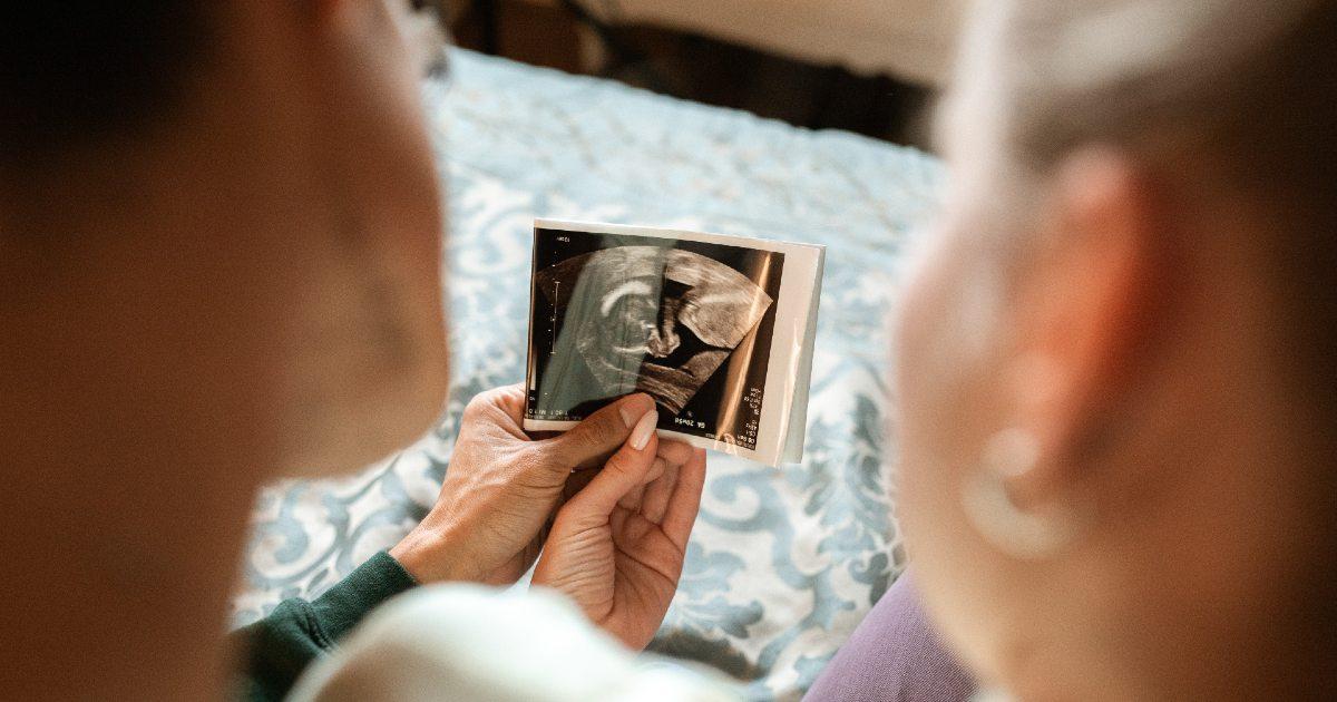 Una pareja mira una ecografía de su bebé
