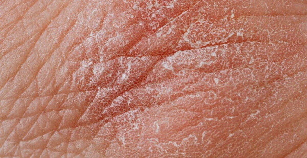 piel-escamosa-descamación